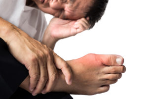 Man with Gout Med Pic