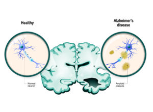 Alzheimer's disease. Aggregation of proteins, Amyloid Buildup